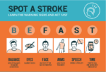 Stroke: Know the Signs. Be Ready to Act.